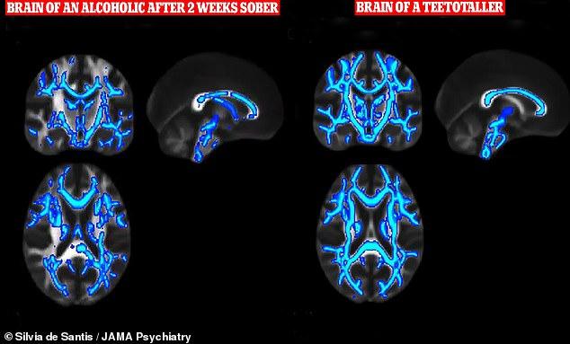 Тревожные кадры о том, как алкоголь разрушает мозг спустя 6 недель после пьянки Интересное